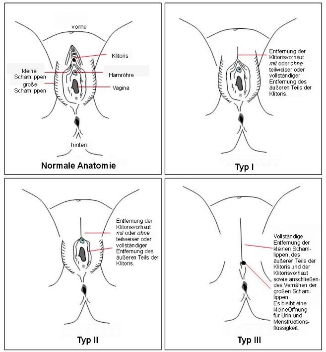 Februar: Internationaler Tag gegen Genitalverstümmelung « Elmar ...: www.redakteur.cc/internationaler-tag-gegen-genitalverstuemmelung